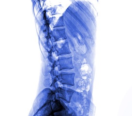 X-ray lumbo-sacral spine and pelvis