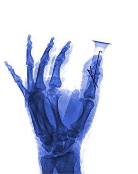 Broken hand after external fixation on roentgenogram