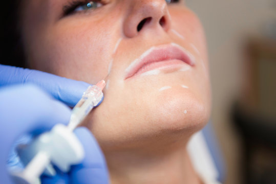 Collagen injection treatment