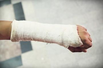 arm splint, be in plaster cast