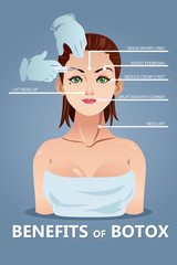 Benefits of Botox