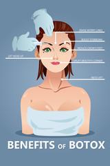 Benefits of Botox