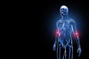 Painful elbows 3D illustration