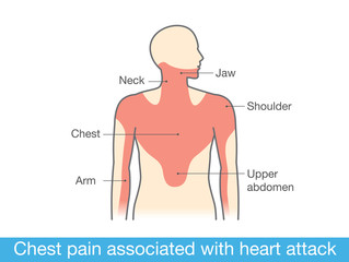 Chest pain associated with heart attack. Medical illustration and info graphic.
