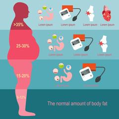 Außerklinische Beatmung bei einem Patienten mit Obesitas-Hypoventilations-Syndrom