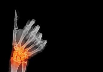 pain human hand x-ray - Medical Image , good sing