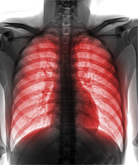 View of a human x-ray film, taken to examine the lungs on white background