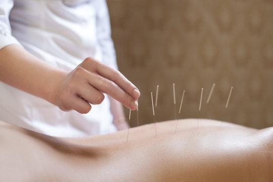 needle acupuncture procedure;