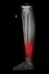 fracture left leg tibia and fibula