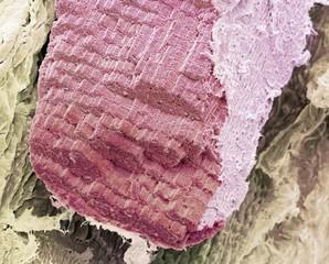 Skeletal muscle fibre, SEM