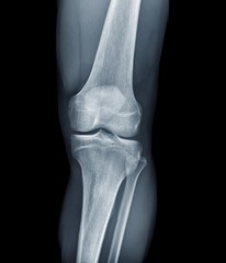 Normal knee, X-rays