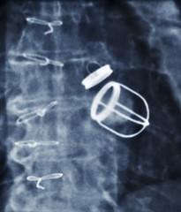 Artificial heart valves, X-ray
