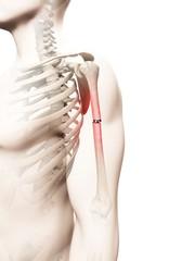 Broken upper arm bone, Illustration