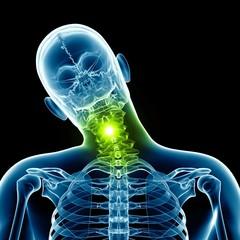Human neck bending sideways, Illustration