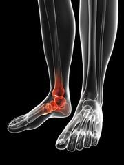 Human foot pain, Illustration