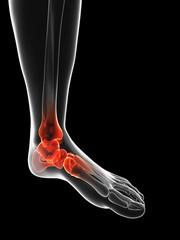 Human ankle pain, Illustration