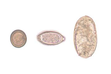 egg parasite on white background