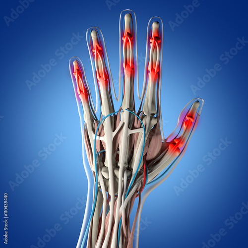 Human Anatomy Hand Arthritis Joint Pain In Fingers 3d