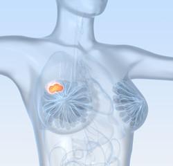 Breast Cancer Mastocarcinoma