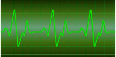 Starke Herzfrequenz grün Sinus Linie durchgehend