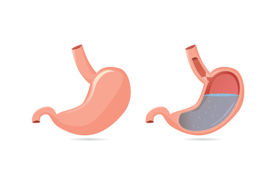 Illustration of outside of stomach muscular and inside which can saw gastric acid.