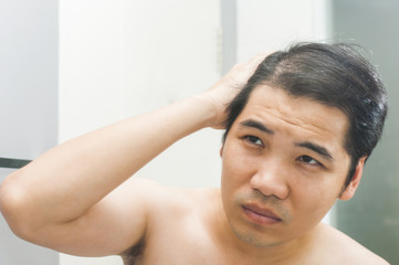 Asian man concerned hair loss / hair thin in front of mirror wit
