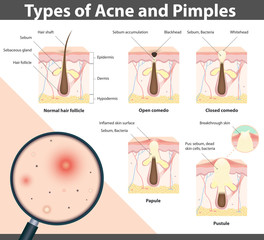 Types of Acne and Pimples, vector illustration
