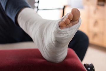 Fiberglass / Plaster leg cas