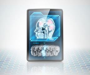 Tablet with scan of cerebral activity on futuristic background