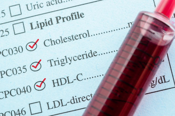 Red mark check on Cholesterol, Triglyceride and HDL-Con request