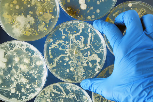 Gloved hand holding bacteria growing in a petri dishes