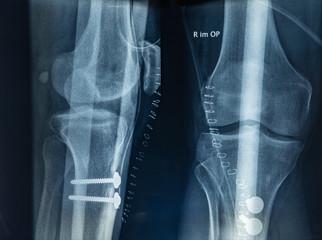 Röntgenbild nach einer Operation nach der Elmslie-Trillat Methode - untere Extremitäten