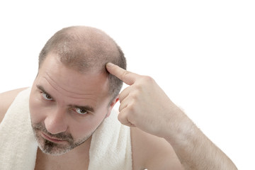 man alopecia baldness hair loss isolated