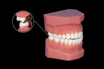 gnashing of teeth dental molars callout