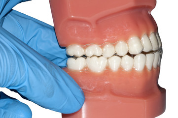 dental cast with invisible orthodontic removable aligners appliance