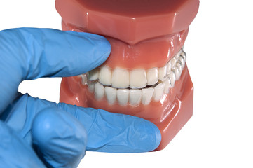 dental mould with invisible removable aligners orthodontic