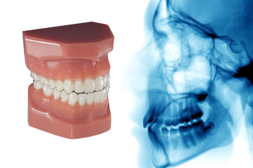 dental mould with invisible orthodontic aligners and cephalometric analysis