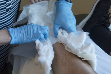 Podiatric Doctor Opening Foot Cast of Post-Operation Patient in Hospital