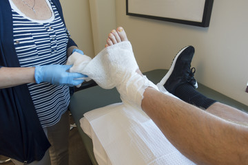 Podiatrist, Doctor or Physical Therapist Wrapping Foot Cast of Patient with Broken, Fractured or Sprained Ankle