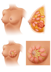 Diagram of woman having breast cancer