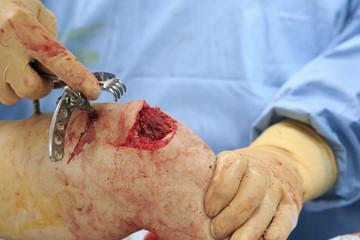 Broken shin bone close-up during the orthopedic surgery