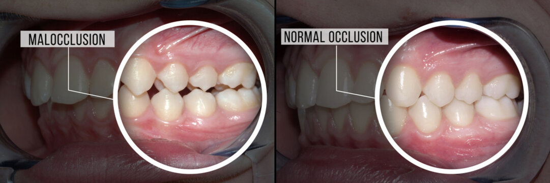 dental treatment malocclusion: before and after