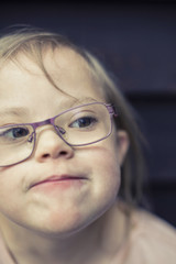 Girl with down syndrome looking away