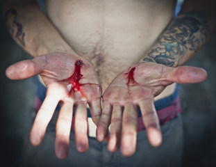 Wounded human hands