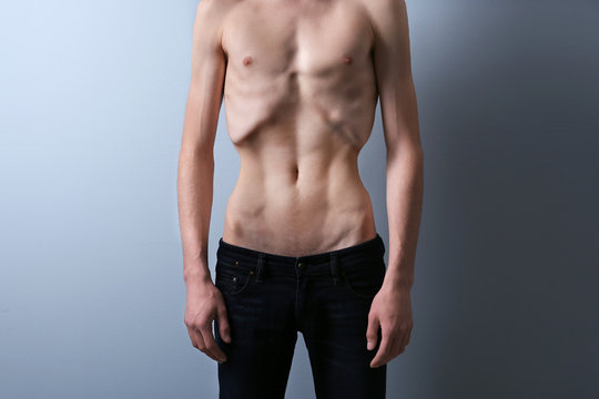 Skinny young man with anorexia on grey background