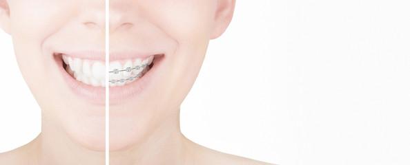 Denti dritti con apparecchio prima e dopo