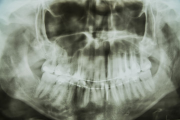 the chest x-ray of your jaw and teeth