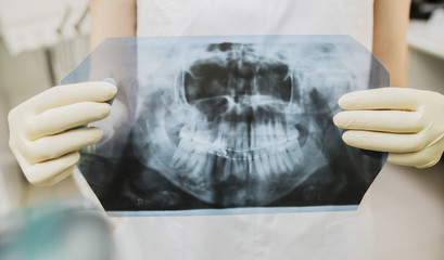 the chest x-ray of your jaw and teeth in the doctor's hands