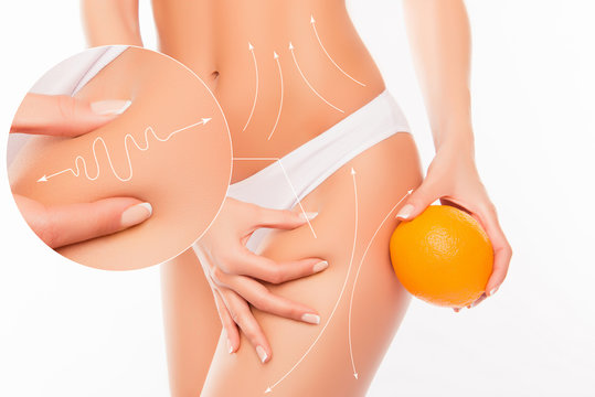 No to cellulite! Close up photo collage of woman  showing her sk