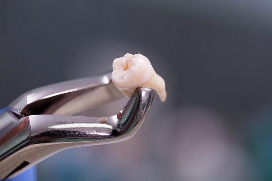 Wisdom Teeth Removal Methods